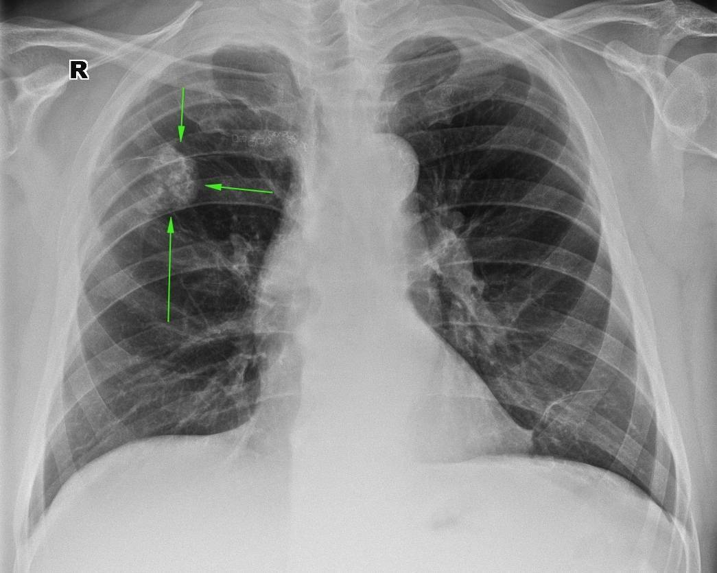 Метатуберкулёзные изменения в лёгких