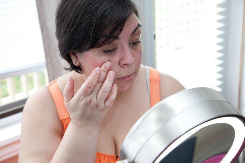 Почему появляются продольные полосы на ногтях рук: причины, способы лечения и профилактические меры