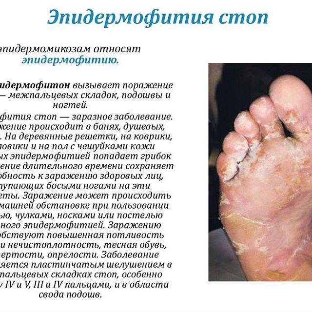 Паховая эпидермофития: причины, симптомы, диагностика и лечение