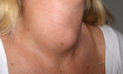 19 признаков проблем с щитовидкой