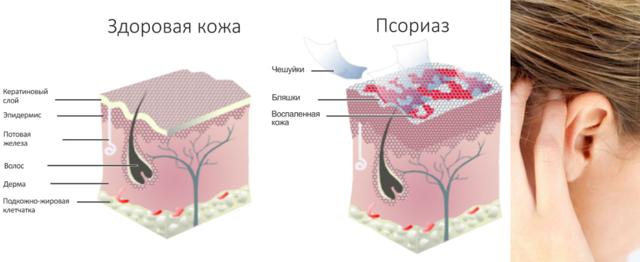 Противогрибковые капли для лечения ушей