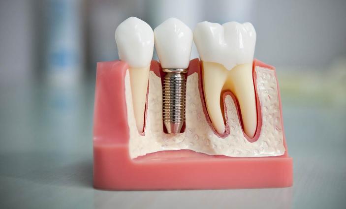 Виды и применение штифтов в стоматологии