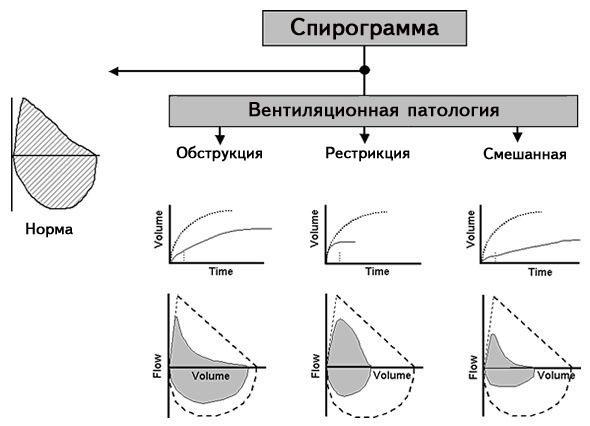 Спирография – что это за процедура, как проводится фвд (функция внешнего дыхания)