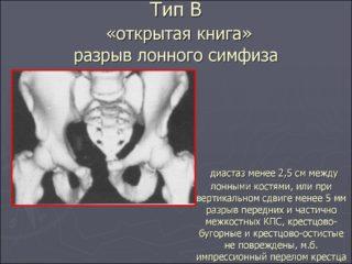 Послеродовой симфизит: причины, признаки, методы борьбы