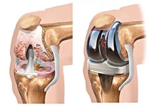 Инструкция по реабилитации после эндопротезирования коленного сустава: упражнения, гимнастика и советы