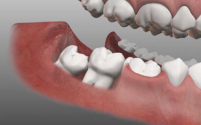Нужно ли удалять зубы мудрости: их роль, показания к удалению, лечение и виды процедур