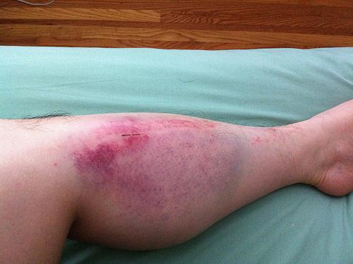 Гематома на ноге после ушиба, удара: как ее лечить, фото образования