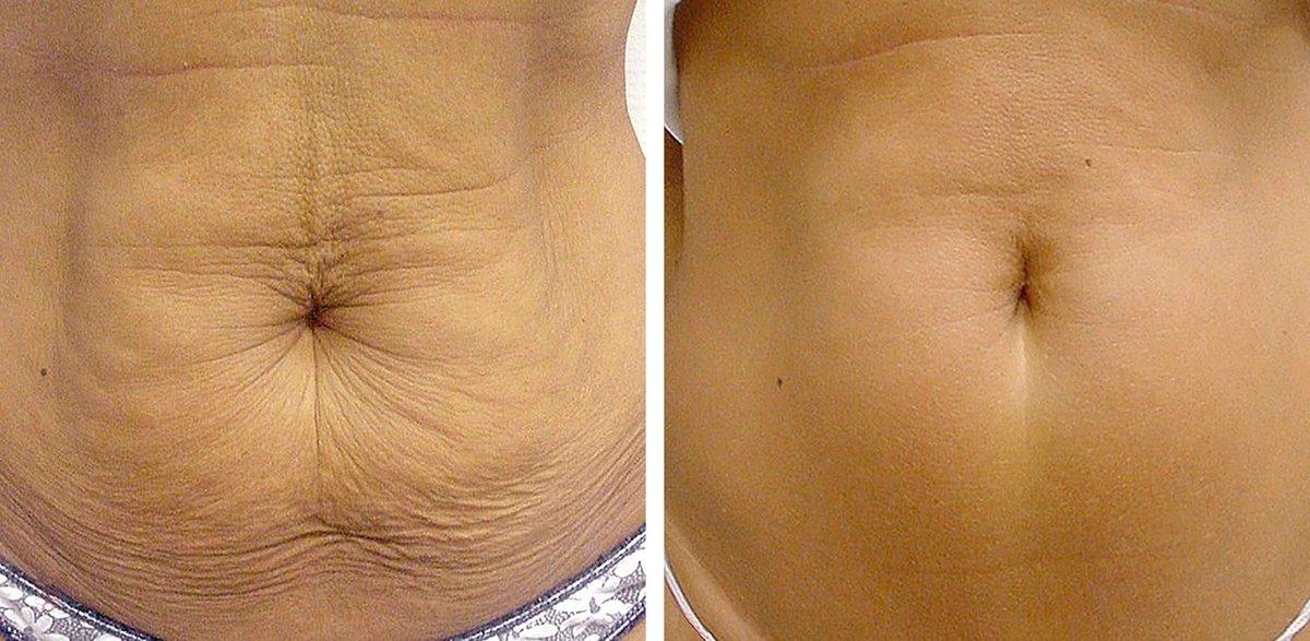 Хотите не просто похудеть, а иметь идеальное тело? тогда вам на шейпинг!