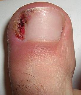 Вросший ноготь на большом пальце ноги – лечение, удаление вросшего ногтя