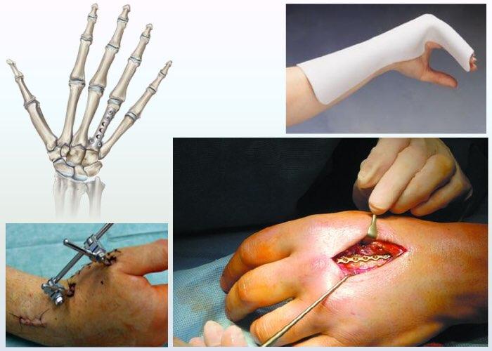 Виды переломов лучевой кости и как их лечат