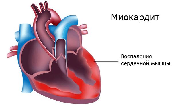Ревматическая лихорадка (ревматизм)