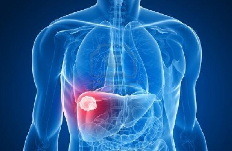 Признаки и источники метастазов в брюшной полости