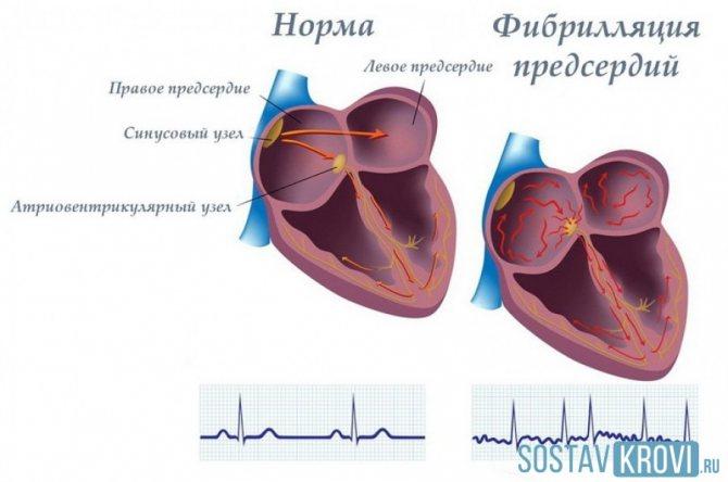 Диета при аритмии сердца: питание при мерцательной форме и приеме варфарина, полезные продукты для женщин и противопоказания по возрасту