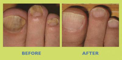 Вартнер нейл эксперт от грибка ногтей – отзывы, цена, инструкция по применению