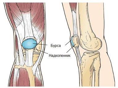 Что такое гнойный бурсит коленного и локтевого сустава: причины, симптомы и лечение