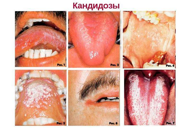 Грибковая пневмония у детей симптомы лечение