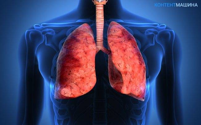 Как выявить и лечить прикорневую пневмонию у детей