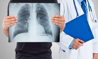 Посттуберкулезные изменения, осложнения и последствия перенесенного туберкулеза