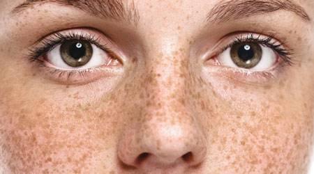 Нарушение пигментации кожи, что это в чем причина. формы депигментации эпидермиса