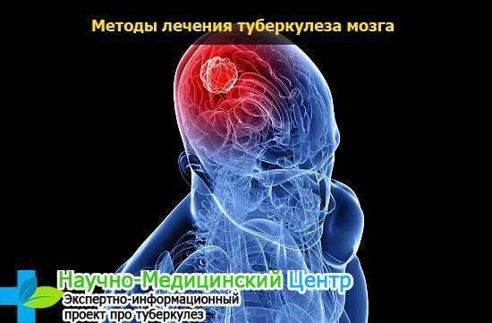 Туберкулез головного мозга