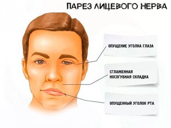 Как снять симптомы и острую боль: способы лечения невралгии лицевого тройничного нерва