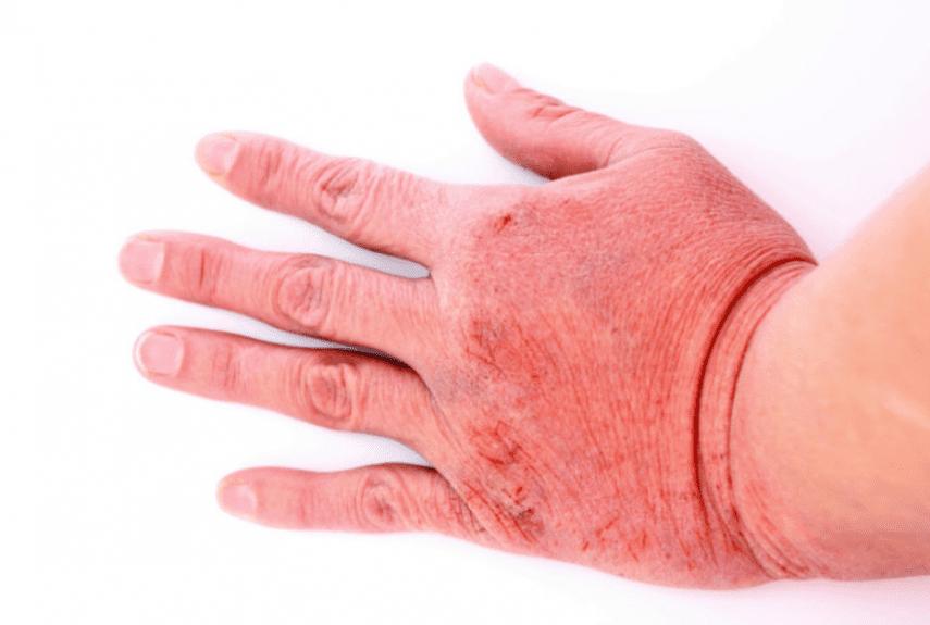 Токсический дерматит  у взрослых и детей —  лечение, причины, симптомы