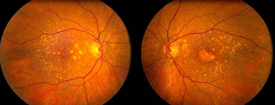 Что такое макулодистрофия сетчатки глаза: признаки и эффективное лечение