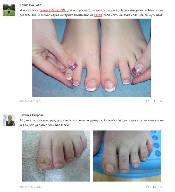 Нафтифин от грибка ногтей: отзывы, цена, аналоги