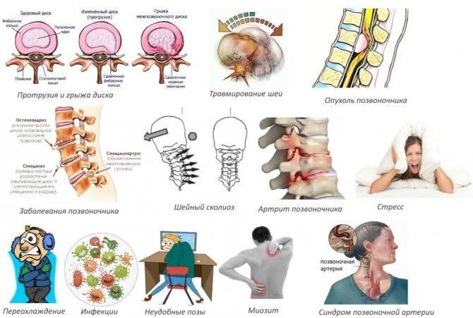 Цервикокраниалгия: понятие, как развивается, признаки, критерии диагноза, принципы лечения