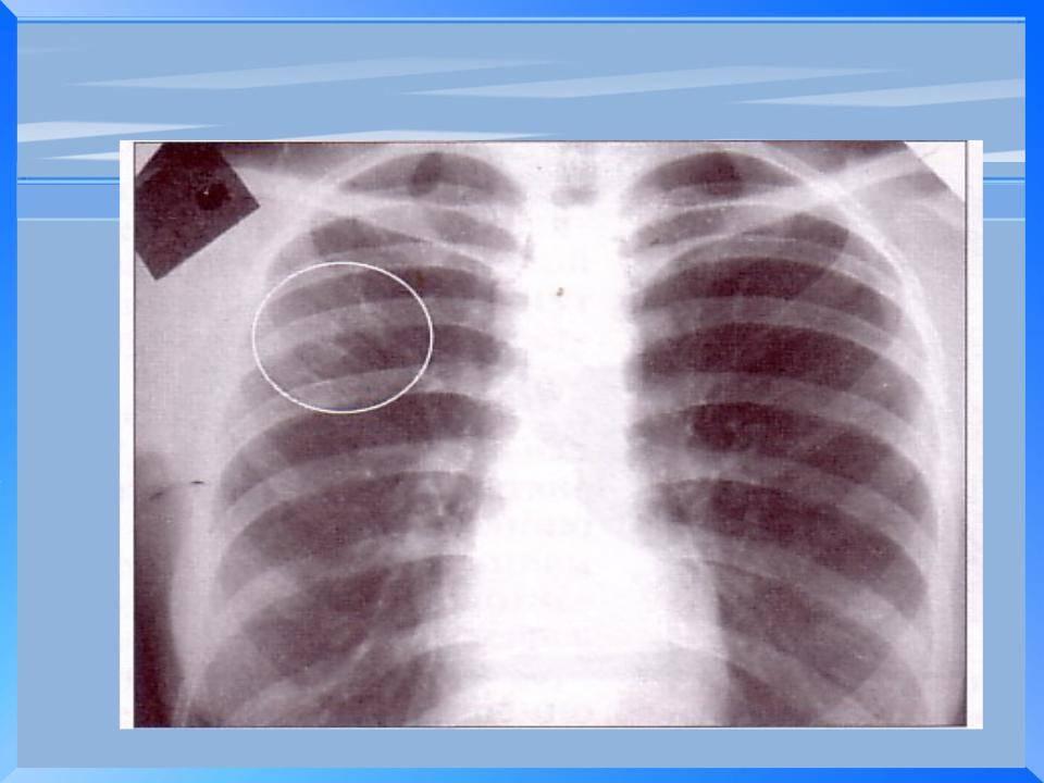 Туберкулез – профилактика при контакте с больным, каким путем передается