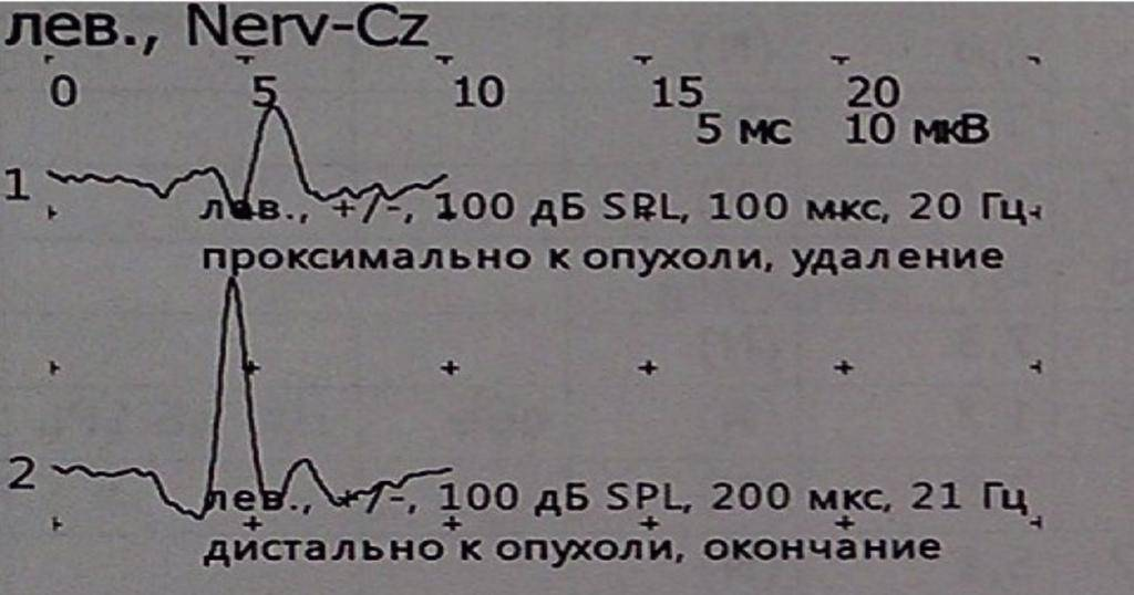 В москве создадут единую базу данных о детях с высоким риском дцп - aрхив медицинских новостей ноябрь-2012