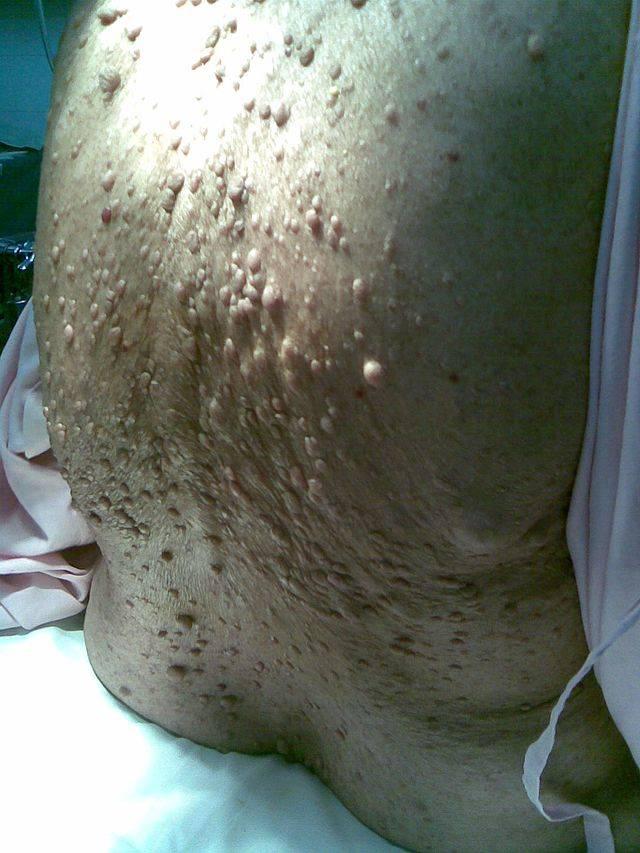 Клинико-лучевая диагностика нейрофиброматоза i типа