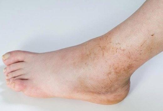 Дисхромия: патология или естественное изменение кожи?