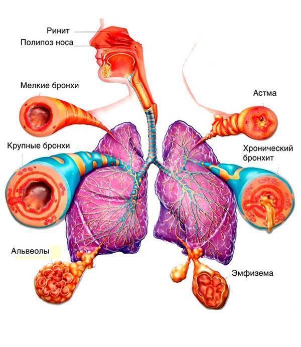Государственная поддержка больных бронхиальной астмой