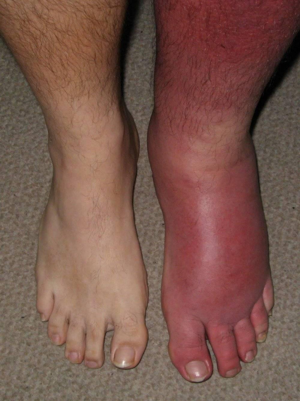 Симптомы и лечение рожистого воспаления ноги