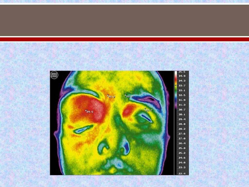 Экзофтальм – болезнь выпученных глаз