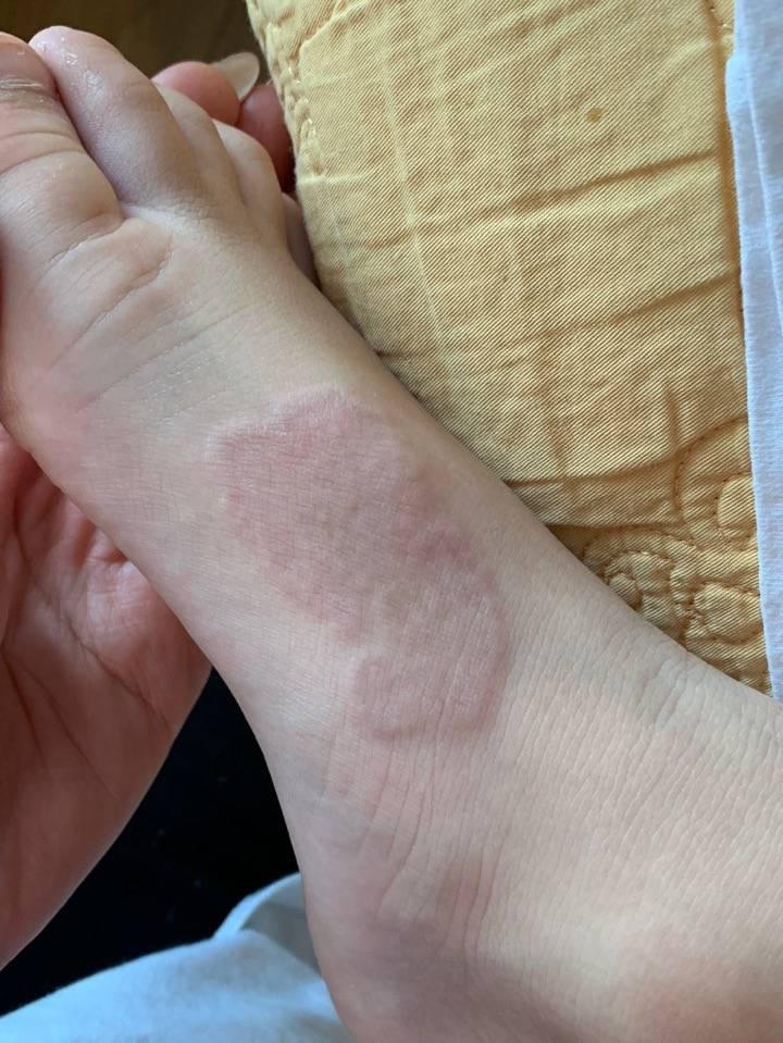Нужно ли лечить гранулёму кольцевидную у ребёнка и как