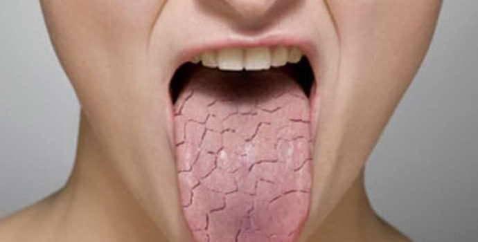 Воспаление языка — причины, симптомы, лечение. как лечить воспаление ротовой полости и языка?