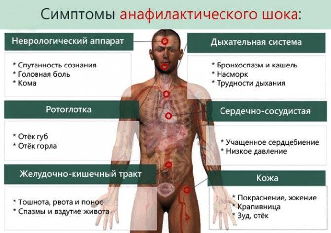 Анафилактический шок: симптомы, лечение, причины