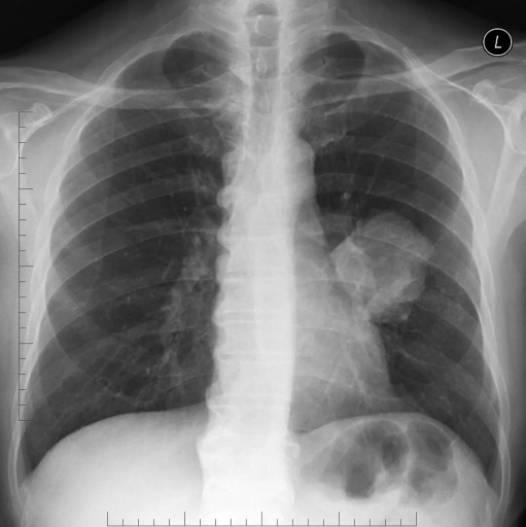 Что покажет флюорография при воспалении лёгких: ценность диагностики