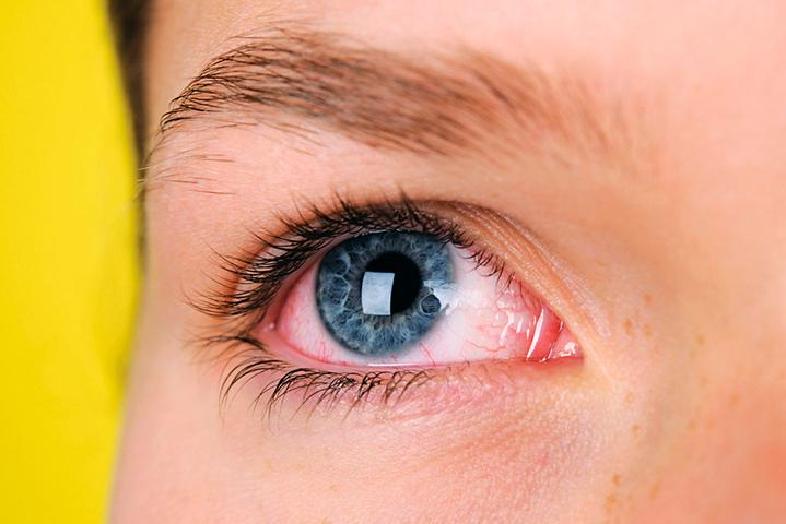 Аллергический конъюнктивит: симптомы, лечение
