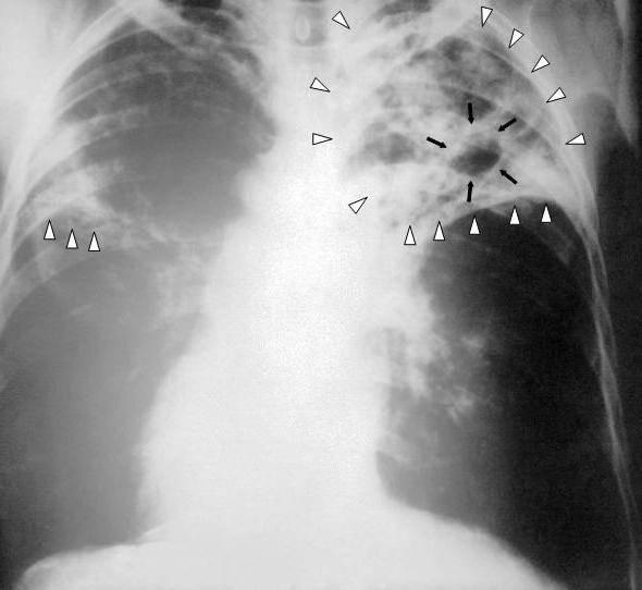 Как можно заразиться туберкулезом? как передается туберкулез от человека к человеку?