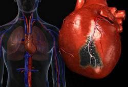 Лечение атеросклеротического кардиосклероза
