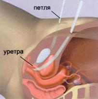 Недержание мочи при кашле: симптомы, причины, диагностика и лечение