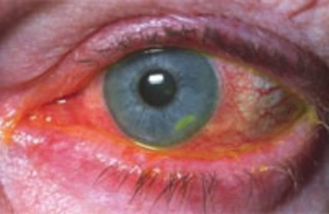 Травматический кератит