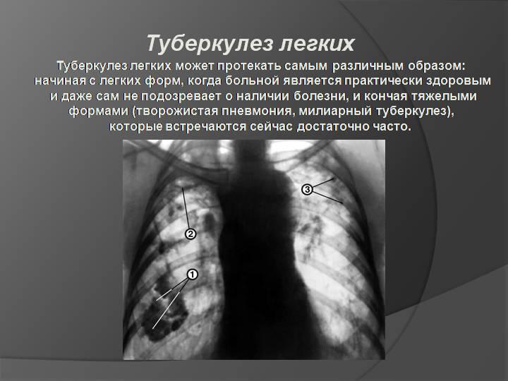 Основные различия между пневмонией и туберкулезом
