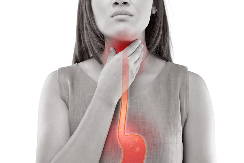 Гастроэзофагеальная рефлюксная болезнь симптомы лечение кашель