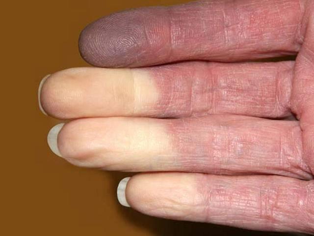 Болезнь рейно: симптомы и лечение