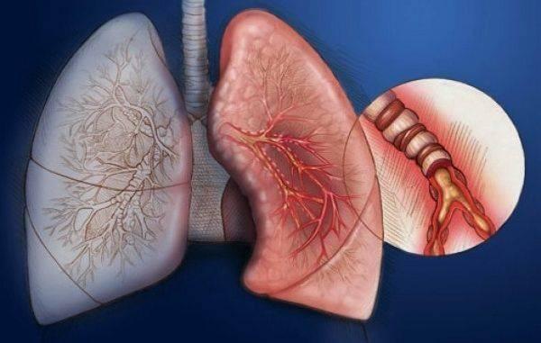 Причины и лечение диффузного эндобронхита