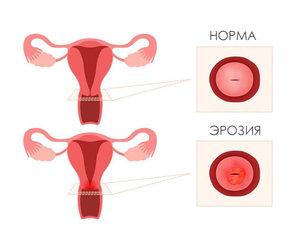 Эрозия шейки матки: причины, симптомы, лечение